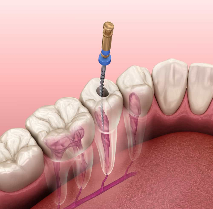 Advantages of Root Canal Treatment