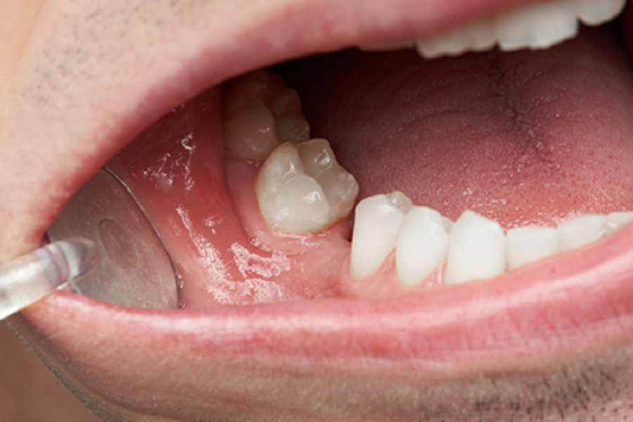 How Dental Implants Help You in Missing Tooth Problems