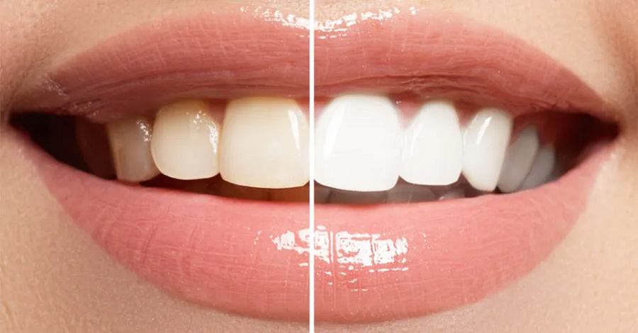 Top Reasons Showing That Teeth Whitening is a Great Idea